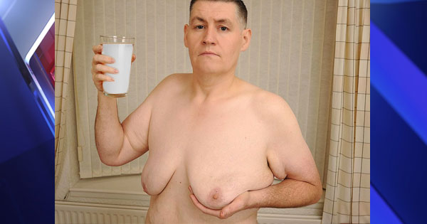A 54 Year-old man consumed too much soy milk, and his chest couldn't stop growing