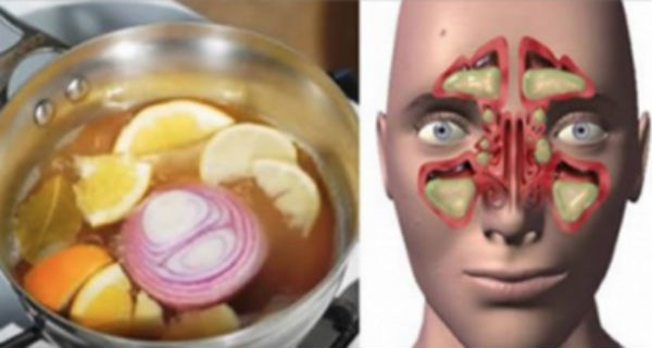 Natural miracle cure that fights the flu and cold! You will feel great after the first day!