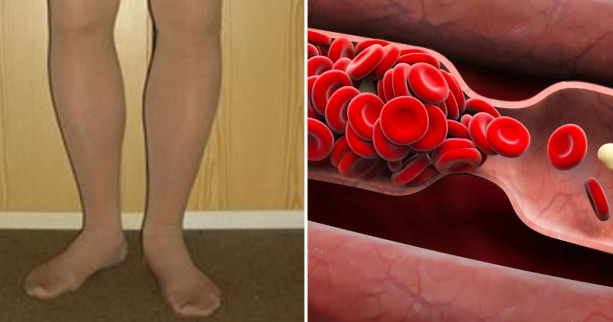 Your body warns you before a blood clot: 8 hidden signs that must never be ignored!