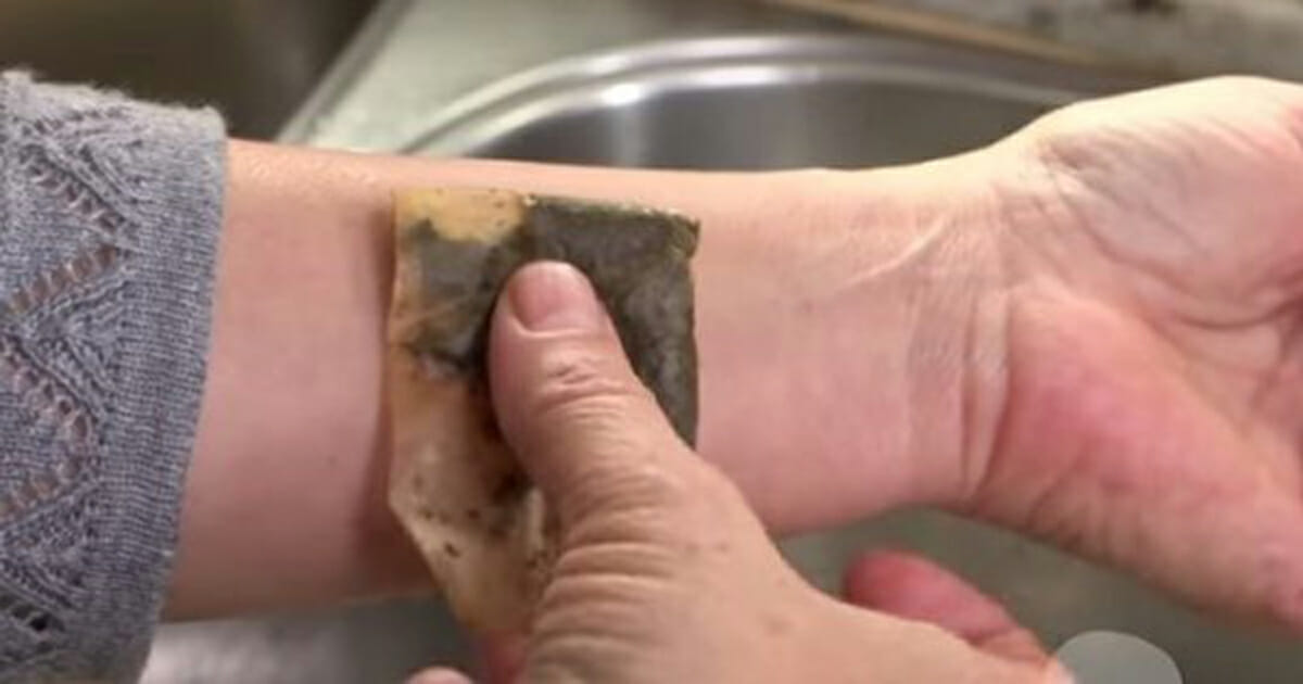 A woman puts a tea bag on her wrist and a few minutes later? The result is simply amazing!