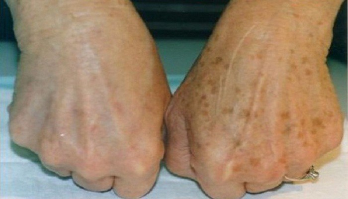 She noticed age spots on her hands, then removed them with two natural ingredients